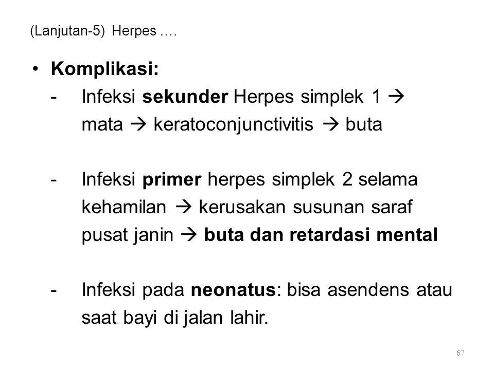 (Lanjutan-5) Herpes …. Komplikasi: -Infeksi sekunder Herpes simplek 1  mata  keratoconjunctivitis  buta -Infeksi primer herpes simplek 2 selama keh