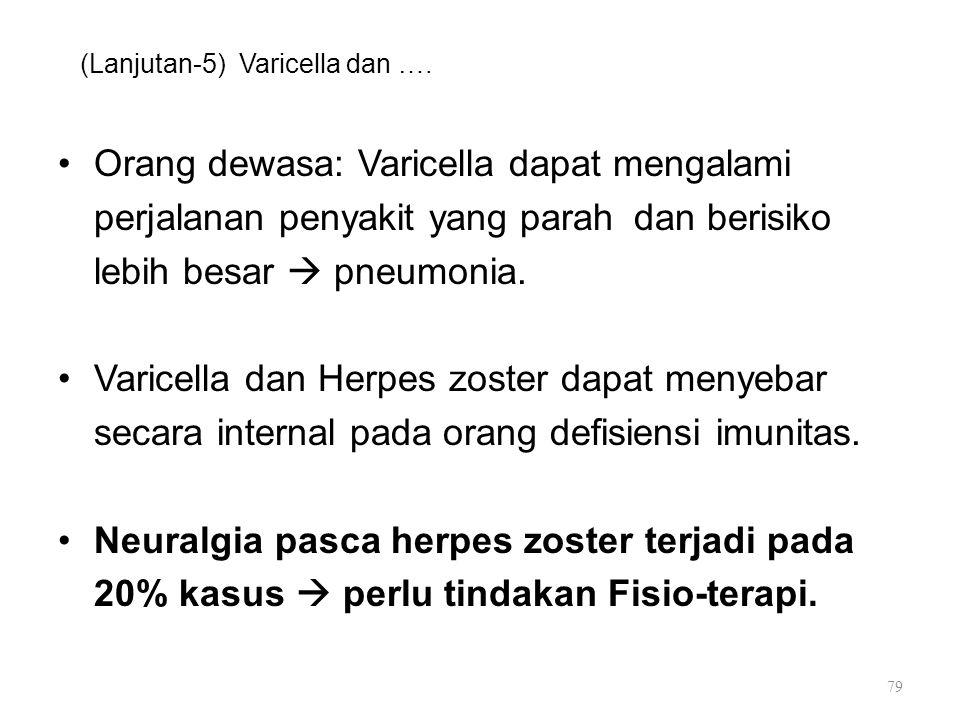 (Lanjutan-5) Varicella dan …. Orang dewasa: Varicella dapat mengalami perjalanan penyakit yang parah dan berisiko lebih besar  pneumonia. Varicella d