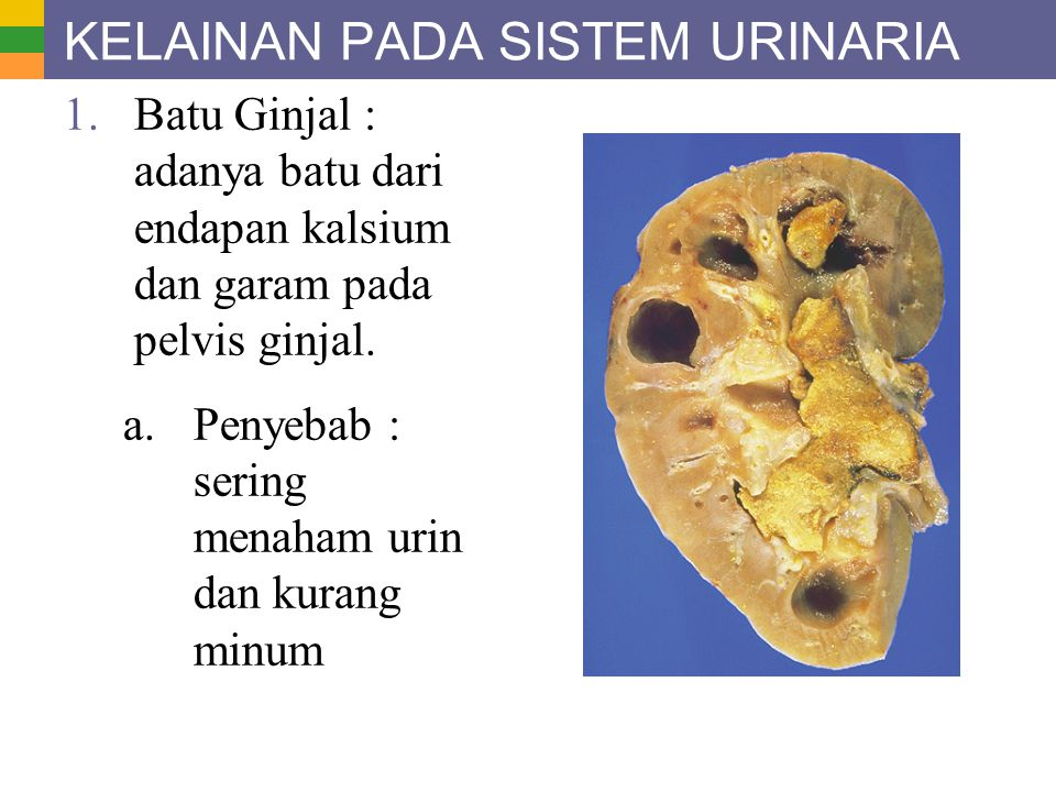 KELAINAN PADA SISTEM URINARIA 1.Batu Ginjal : adanya batu dari endapan kalsium dan garam pada pelvis ginjal. a. Penyebab : sering menaham urin dan kur