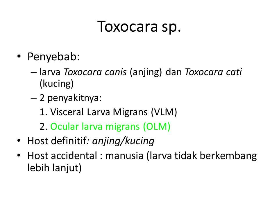 Toxocara sp. Penyebab: – larva Toxocara canis (anjing) dan Toxocara cati (kucing) – 2 penyakitnya: 1. Visceral Larva Migrans (VLM) 2. Ocular larva mig