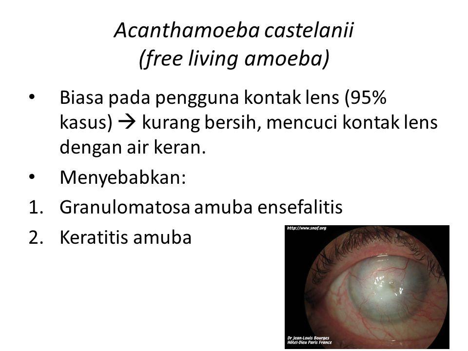 Acanthamoeba castelanii (free living amoeba) Biasa pada pengguna kontak lens (95% kasus)  kurang bersih, mencuci kontak lens dengan air keran. Menyeb