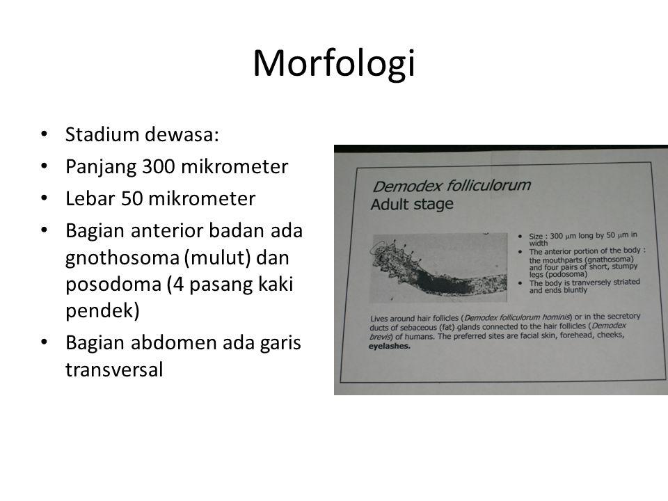Morfologi Stadium dewasa: Panjang 300 mikrometer Lebar 50 mikrometer Bagian anterior badan ada gnothosoma (mulut) dan posodoma (4 pasang kaki pendek)
