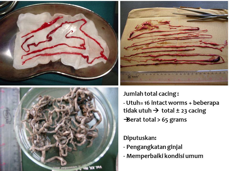 Jumlah total cacing : - Utuh= 16 intact worms + beberapa tidak utuh  total ± 23 cacing  Berat total > 65 grams Diputuskan: - Pengangkatan ginjal - M