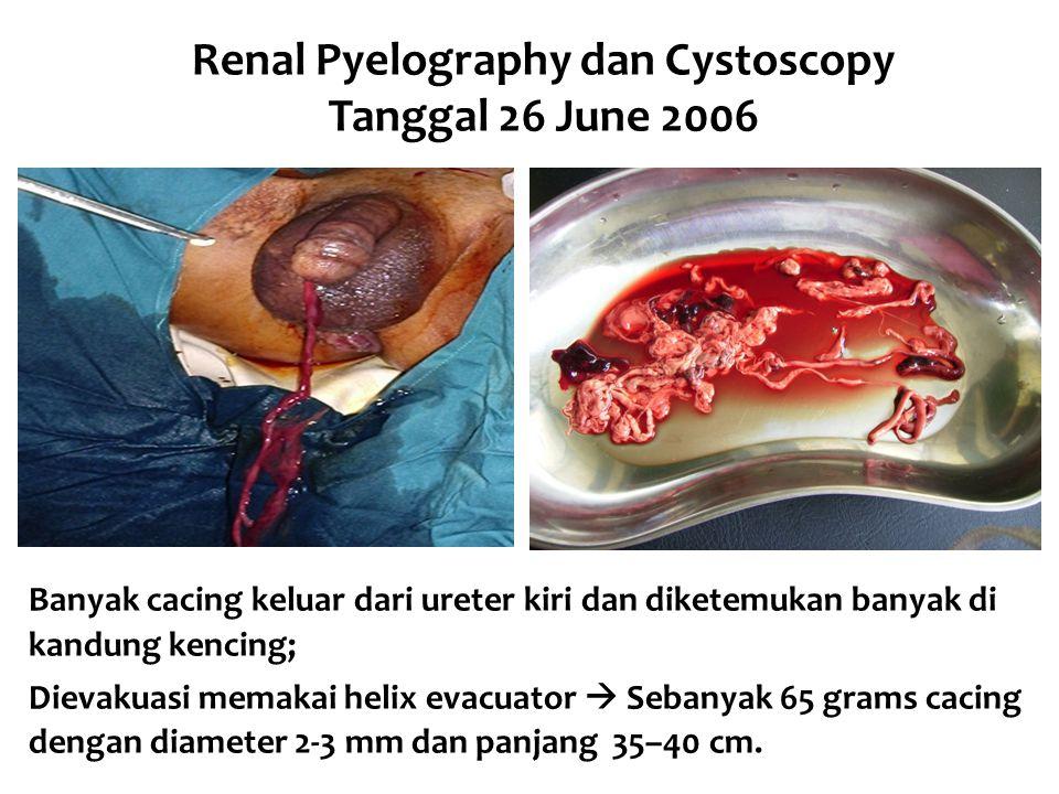 Renal Pyelography dan Cystoscopy Tanggal 26 June 2006 Banyak cacing keluar dari ureter kiri dan diketemukan banyak di kandung kencing; Dievakuasi mema
