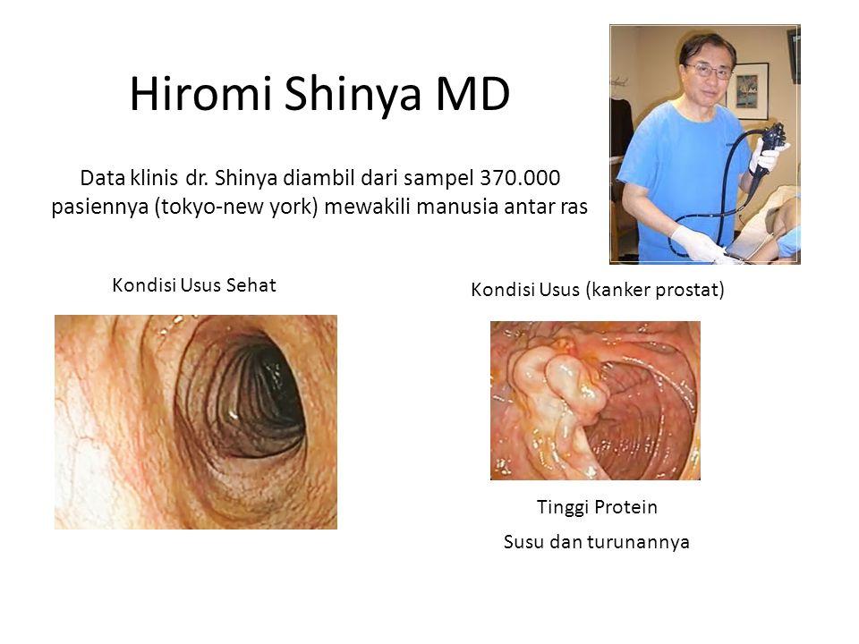 Kondisi Usus Sehat Kondisi Usus (kanker prostat) Tinggi Protein Susu dan turunannya Hiromi Shinya MD Data klinis dr.