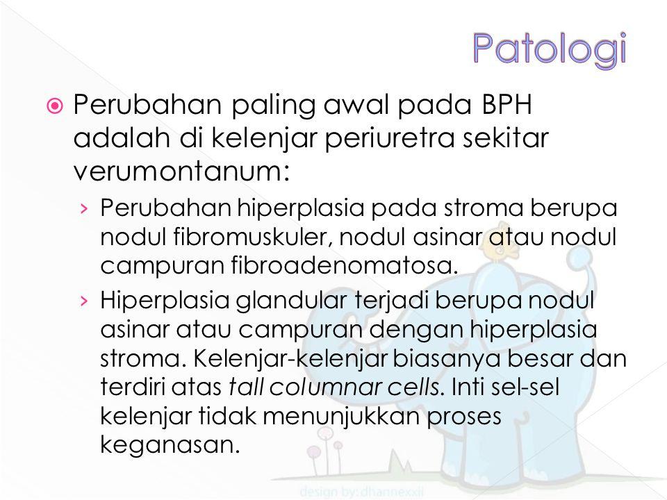  Perubahan paling awal pada BPH adalah di kelenjar periuretra sekitar verumontanum: › Perubahan hiperplasia pada stroma berupa nodul fibromuskuler, nodul asinar atau nodul campuran fibroadenomatosa.