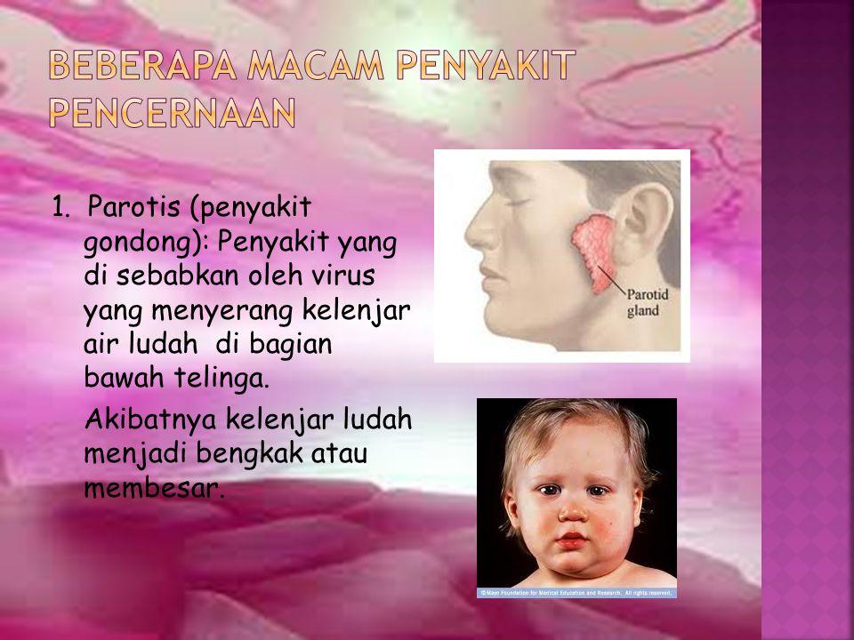 1. Parotis (penyakit gondong): Penyakit yang di sebabkan oleh virus yang menyerang kelenjar air ludah di bagian bawah telinga. Akibatnya kelenjar luda