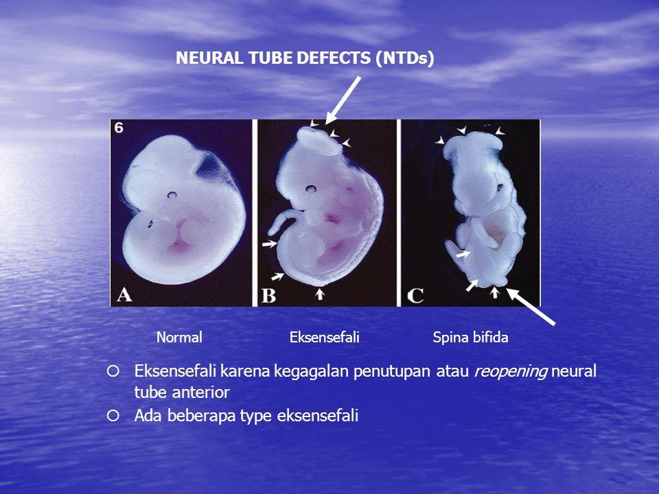 EksensefaliSpina bifidaNormal NEURAL TUBE DEFECTS (NTDs) ¡Eksensefali karena kegagalan penutupan atau reopening neural tube anterior ¡Ada beberapa type eksensefali