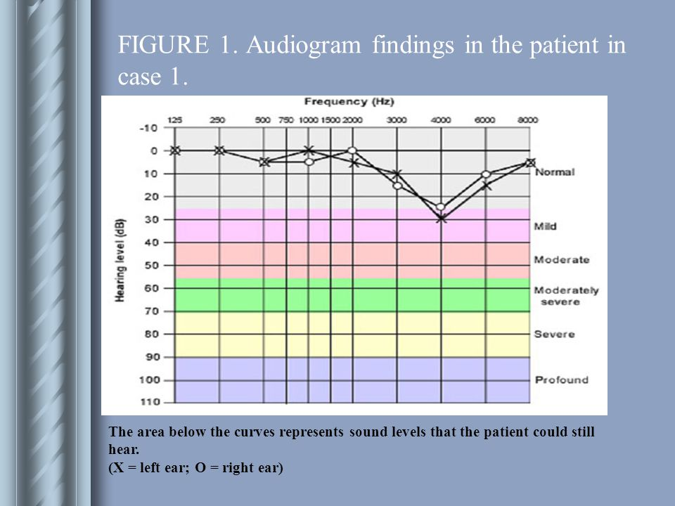 FIGURE 1.Audiogram findings in the patient in case 1.