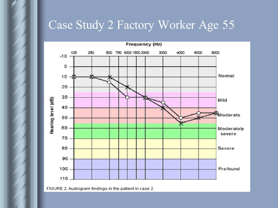 Case Study 2 Factory Worker Age 55