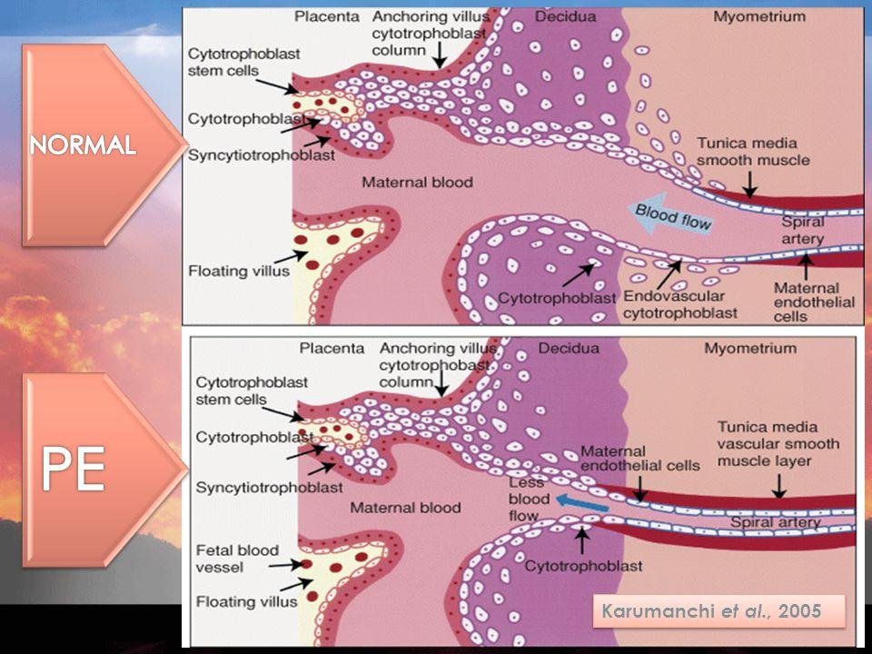 Cytothrophoblast invasion Poor placentation Acute atherosis PBLsCytokinesPGsROS Placental debris Endothelial cell activation Immunologic factors Maternal syndrome ARDS Cardiomyopathy Eclampsia /stroke Edema Microangiopatic hemolysis/thromb ocytopaenia/DIC Liver damage/hep atoma/ruptur e Gomerular endotheliosis/protein uria/ATN Hypertension Stage 1 Stage 2 Thrombophilia Multiple preg.