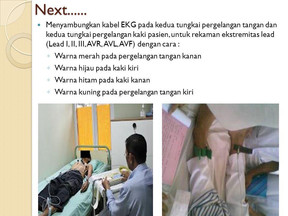 Next...... Menyambungkan kabel EKG pada kedua tungkai pergelangan tangan dan kedua tungkai pergelangan kaki pasien, untuk rekaman ekstremitas lead (Le