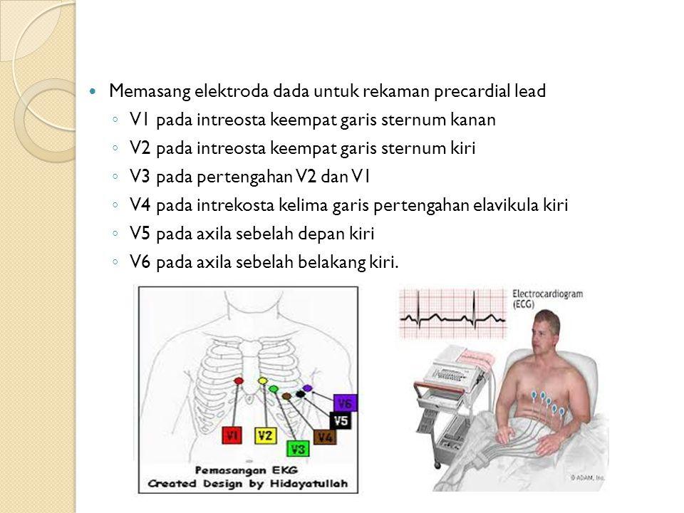 Memasang elektroda dada untuk rekaman precardial lead ◦ V1 pada intreosta keempat garis sternum kanan ◦ V2 pada intreosta keempat garis sternum kiri ◦