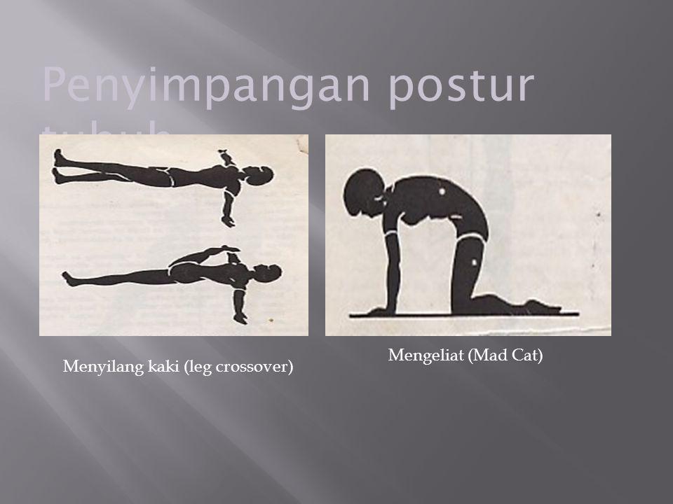 Penyimpangan postur tubuh Menyilang kaki (leg crossover) Mengeliat (Mad Cat)