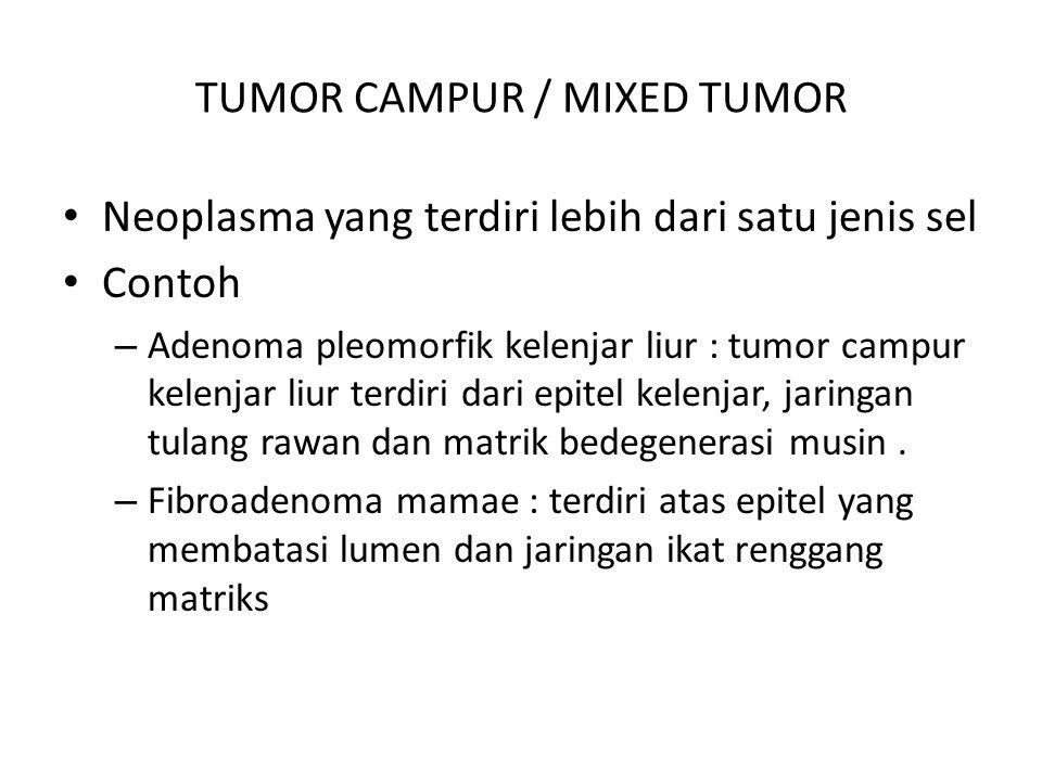 TUMOR CAMPUR / MIXED TUMOR Neoplasma yang terdiri lebih dari satu jenis sel Contoh – Adenoma pleomorfik kelenjar liur : tumor campur kelenjar liur ter