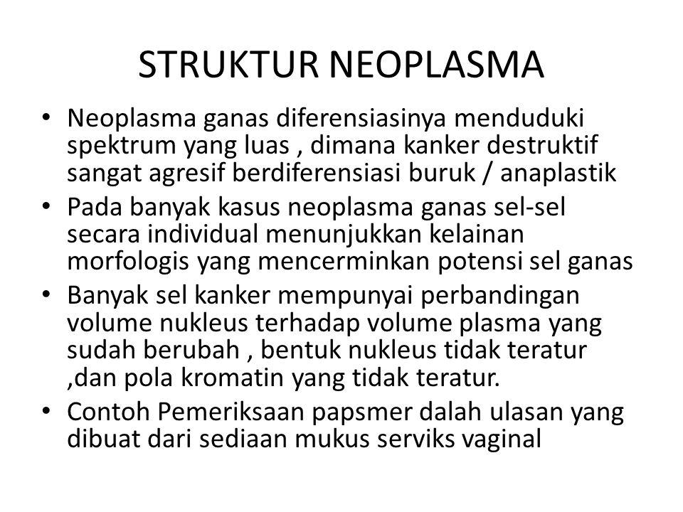 STRUKTUR NEOPLASMA Neoplasma ganas diferensiasinya menduduki spektrum yang luas, dimana kanker destruktif sangat agresif berdiferensiasi buruk / anapl