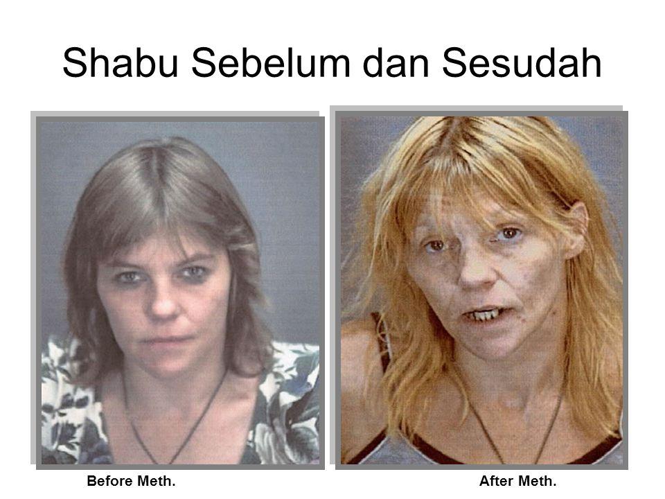 Otak Normal Tanpa Drugs Alcohol 25 tahun Marijuana 12 tahun Heroin 20 tahun Meth / Shabu: 2 tahun