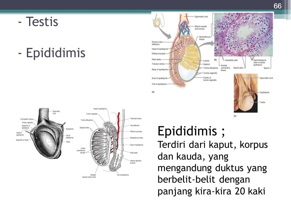 - Testis - Epididimis 66 Epididimis ; Terdiri dari kaput, korpus dan kauda, yang mengandung duktus yang berbelit-belit dengan panjang kira-kira 20 kak