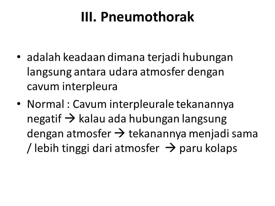 III. Pneumothorak adalah keadaan dimana terjadi hubungan langsung antara udara atmosfer dengan cavum interpleura Normal : Cavum interpleurale tekanann