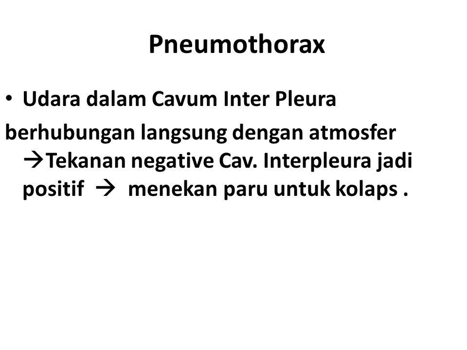 Pneumothorax Udara dalam Cavum Inter Pleura berhubungan langsung dengan atmosfer  Tekanan negative Cav. Interpleura jadi positif  menekan paru untuk