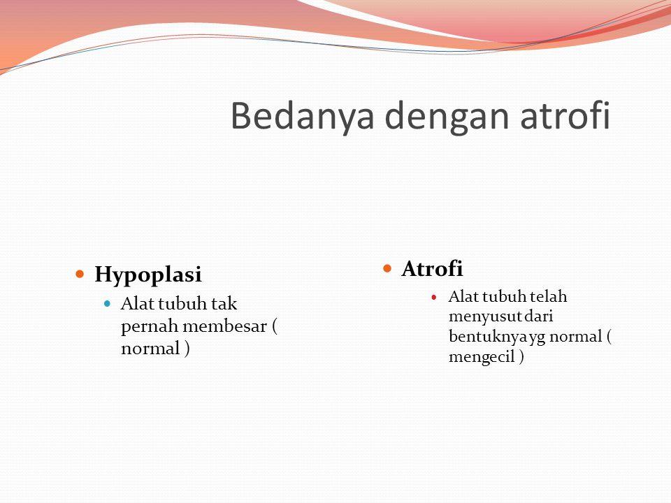 Bedanya dengan atrofi Hypoplasi Alat tubuh tak pernah membesar ( normal ) Atrofi Alat tubuh telah menyusut dari bentuknya yg normal ( mengecil )