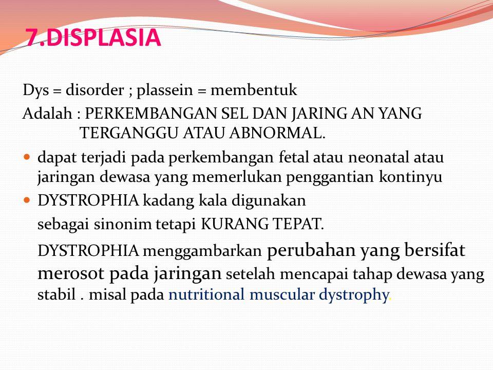 7.DISPLASIA Dys = disorder ; plassein = membentuk Adalah : PERKEMBANGAN SEL DAN JARING AN YANG TERGANGGU ATAU ABNORMAL. dapat terjadi pada perkembanga