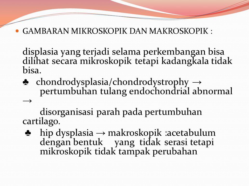 GAMBARAN MIKROSKOPIK DAN MAKROSKOPIK : displasia yang terjadi selama perkembangan bisa dilihat secara mikroskopik tetapi kadangkala tidak bisa. ♣ chon