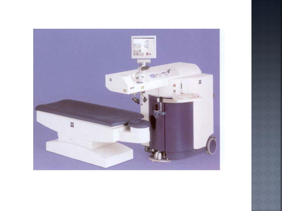  1950  Teknik LASIK diperkenalkan oleh Jose Barraquer yang mengembangkan microkeratome di Bogota, Kolombia.
