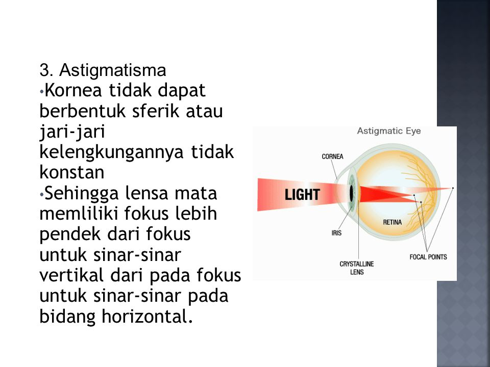 3. Astigmatisma Kornea tidak dapat berbentuk sferik atau jari-jari kelengkungannya tidak konstan Sehingga lensa mata memliliki fokus lebih pendek dari