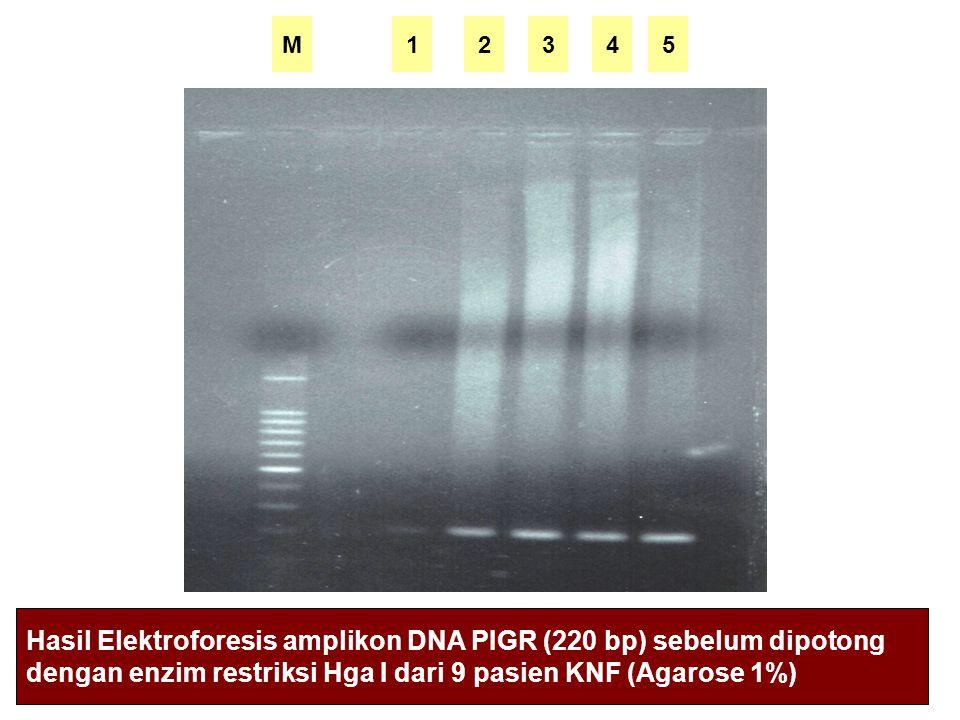 M2453 Hasil Elektroforesis amplikon DNA PIGR (220 bp) sebelum dipotong dengan enzim restriksi Hga I dari 9 pasien KNF (Agarose 1%) 1