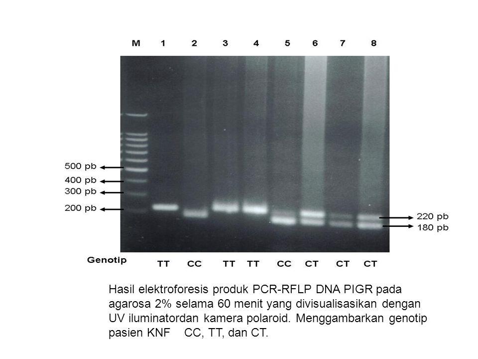 Hasil elektroforesis produk PCR-RFLP DNA PIGR pada agarosa 2% selama 60 menit yang divisualisasikan dengan UV iluminatordan kamera polaroid.