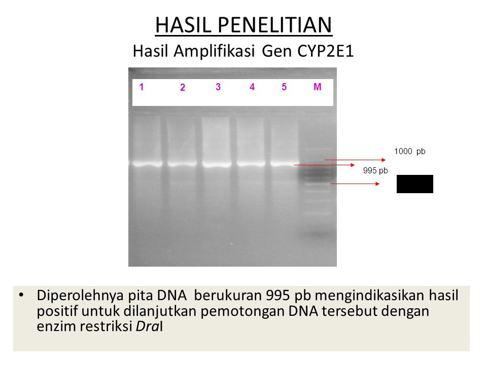 HASIL PENELITIAN Hasil Amplifikasi Gen CYP2E1 Diperolehnya pita DNA berukuran 995 pb mengindikasikan hasil positif untuk dilanjutkan pemotongan DNA te