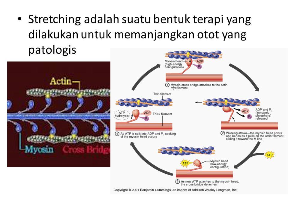 Stretching adalah suatu bentuk terapi yang dilakukan untuk memanjangkan otot yang patologis