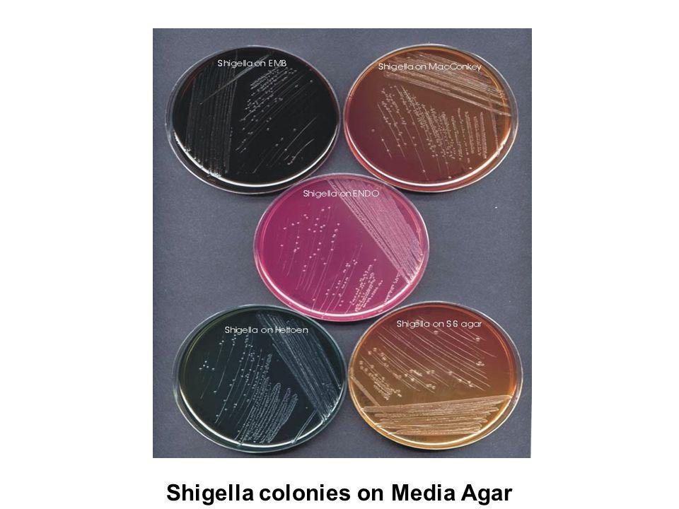 Shigella colonies on Media Agar