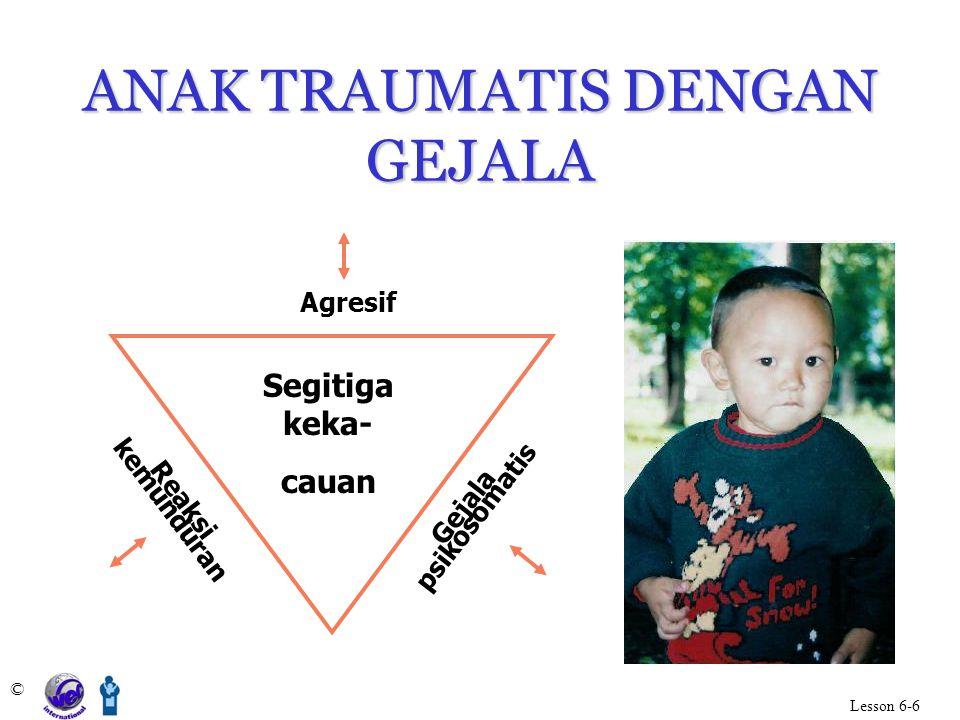 ANAK TRAUMATIS DENGAN GEJALA © Lesson 6-6 Agresif Reaksi kemunduran Gejala psikosomatis Segitiga keka- cauan