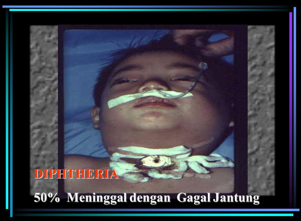 Penyebab Corynebacterium diphtheriae Gejala dapat tidak ada atau ringan sekali berupa membran dalam rongga hidung sampai sangat berat dan menyebabkan