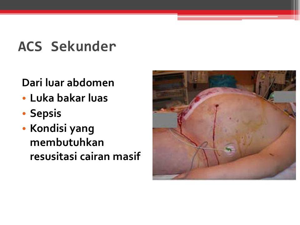 ACS Sekunder Dari luar abdomen Luka bakar luas Sepsis Kondisi yang membutuhkan resusitasi cairan masif