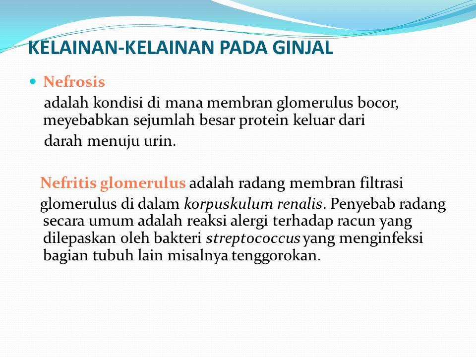 KELAINAN-KELAINAN PADA GINJAL Nefrosis adalah kondisi di mana membran glomerulus bocor, meyebabkan sejumlah besar protein keluar dari darah menuju uri