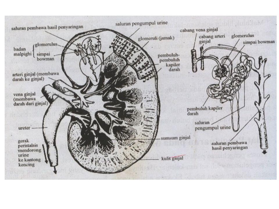 3.Albuminaria Ditemukan protein albumin pada urine.
