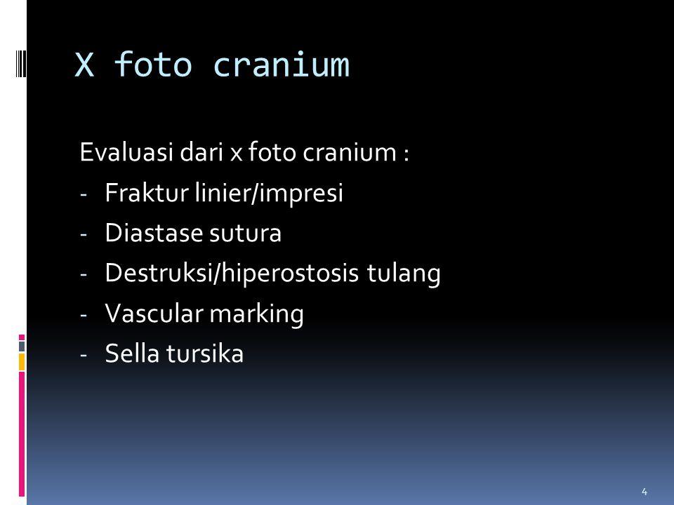 4 X foto cranium Evaluasi dari x foto cranium : - Fraktur linier/impresi - Diastase sutura - Destruksi/hiperostosis tulang - Vascular marking - Sella