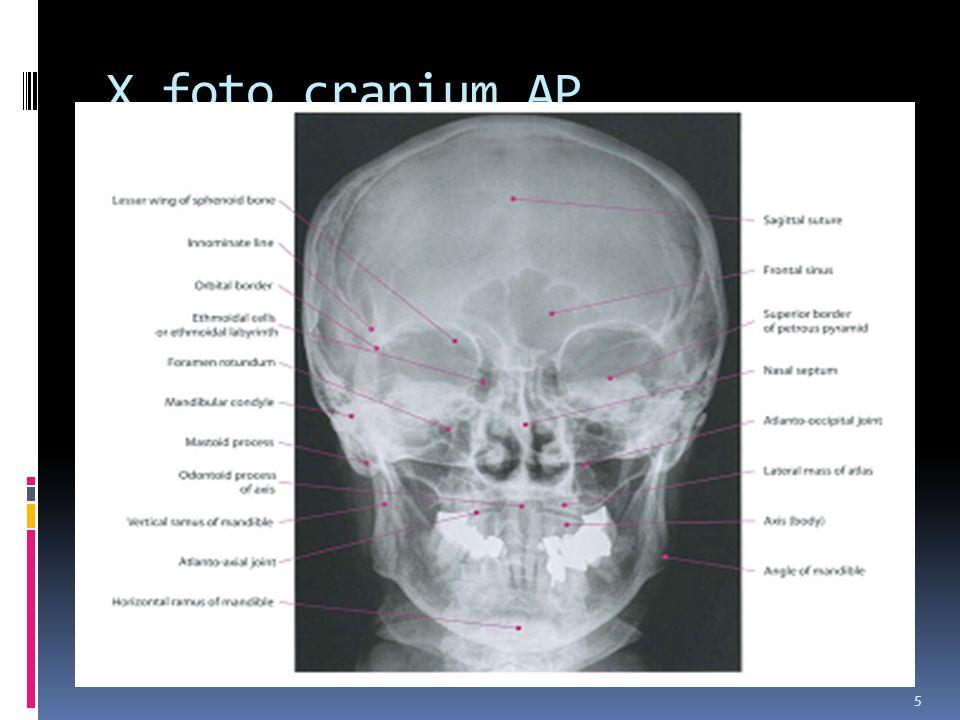 5 X foto cranium AP