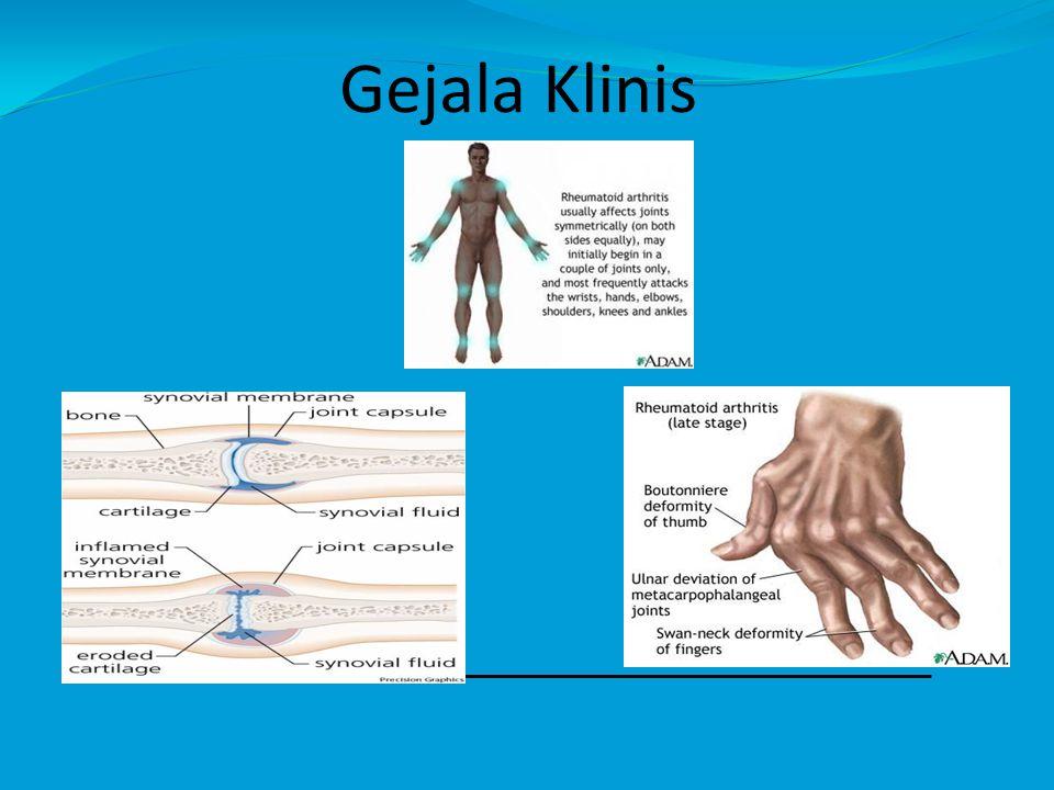 Gejala Klinis
