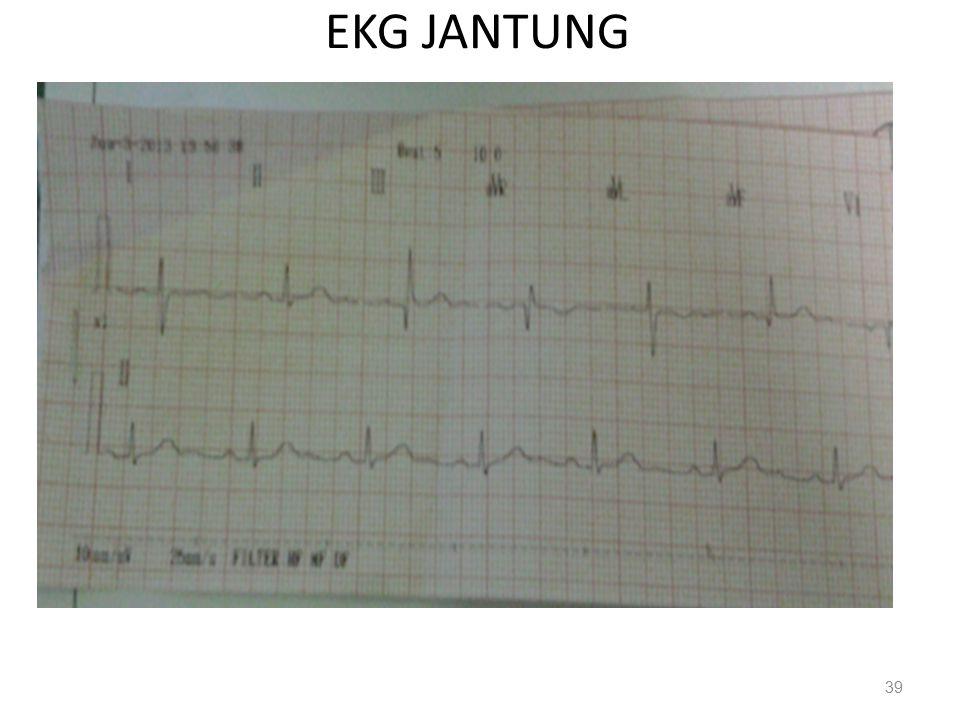 EKG JANTUNG 39