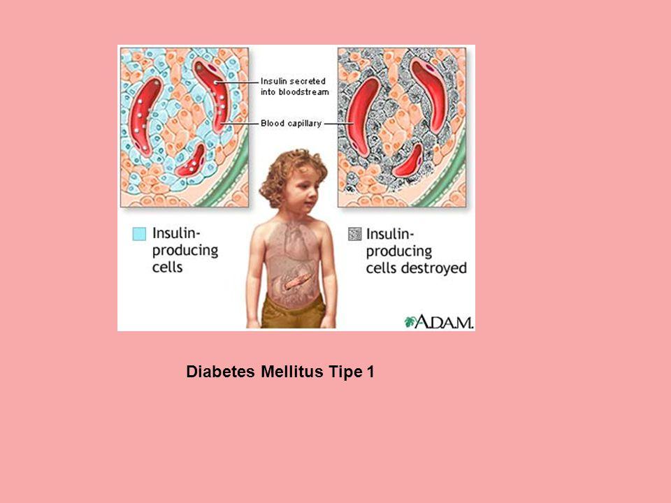 Diabetes Mellitus Tipe 1