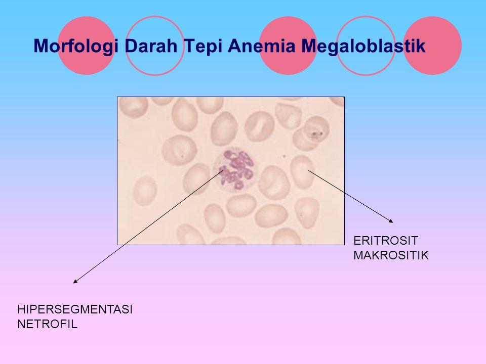 Morfologi Darah Tepi Anemia Megaloblastik ERITROSIT MAKROSITIK HIPERSEGMENTASI NETROFIL