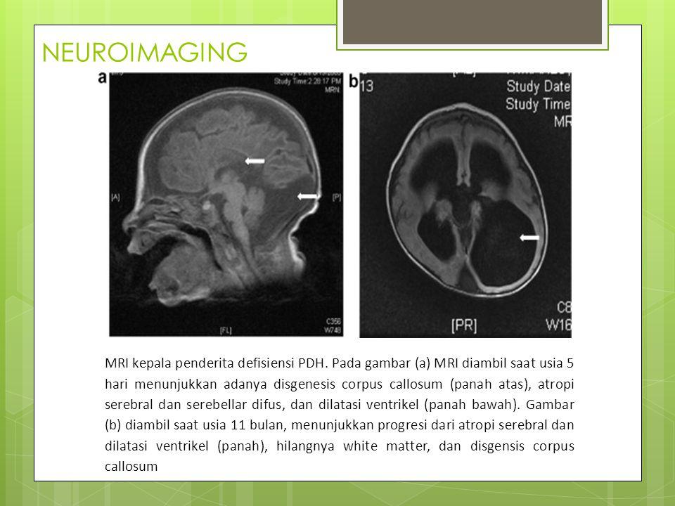 NEUROIMAGING MRI kepala penderita defisiensi PDH.