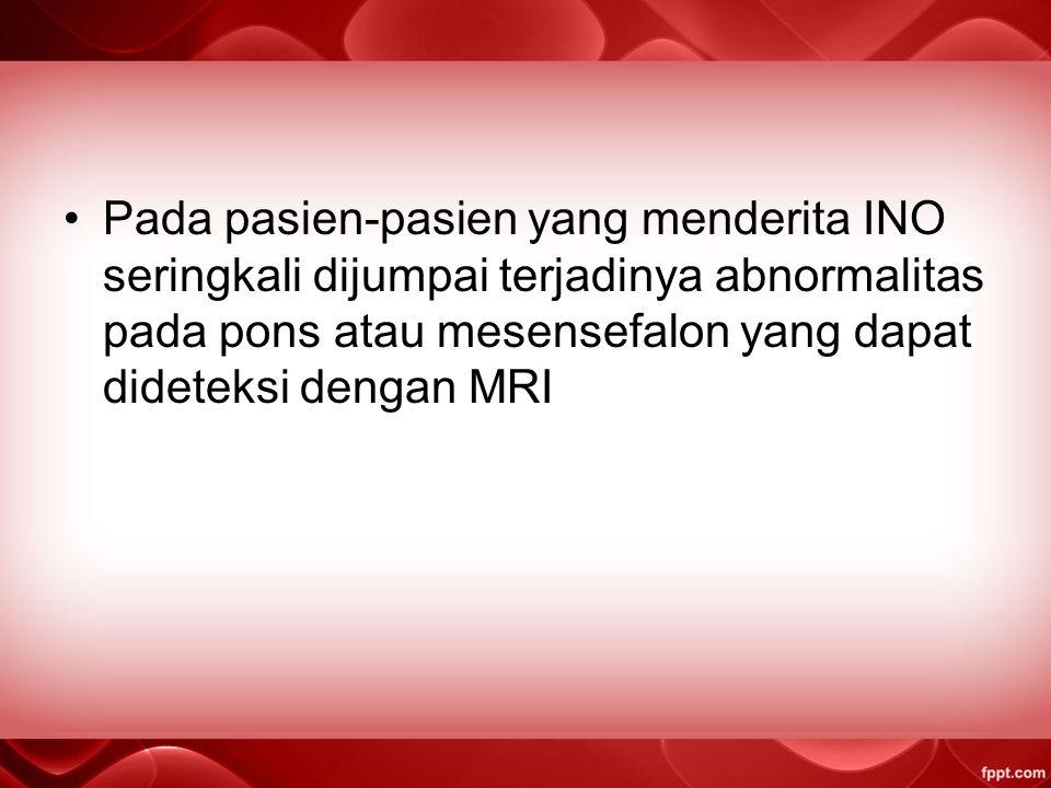 Pada pasien-pasien yang menderita INO seringkali dijumpai terjadinya abnormalitas pada pons atau mesensefalon yang dapat dideteksi dengan MRI