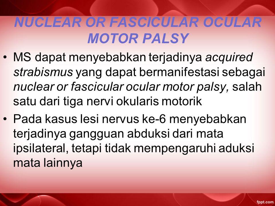 NUCLEAR OR FASCICULAR OCULAR MOTOR PALSY MS dapat menyebabkan terjadinya acquired strabismus yang dapat bermanifestasi sebagai nuclear or fascicular ocular motor palsy, salah satu dari tiga nervi okularis motorik Pada kasus lesi nervus ke-6 menyebabkan terjadinya gangguan abduksi dari mata ipsilateral, tetapi tidak mempengaruhi aduksi mata lainnya