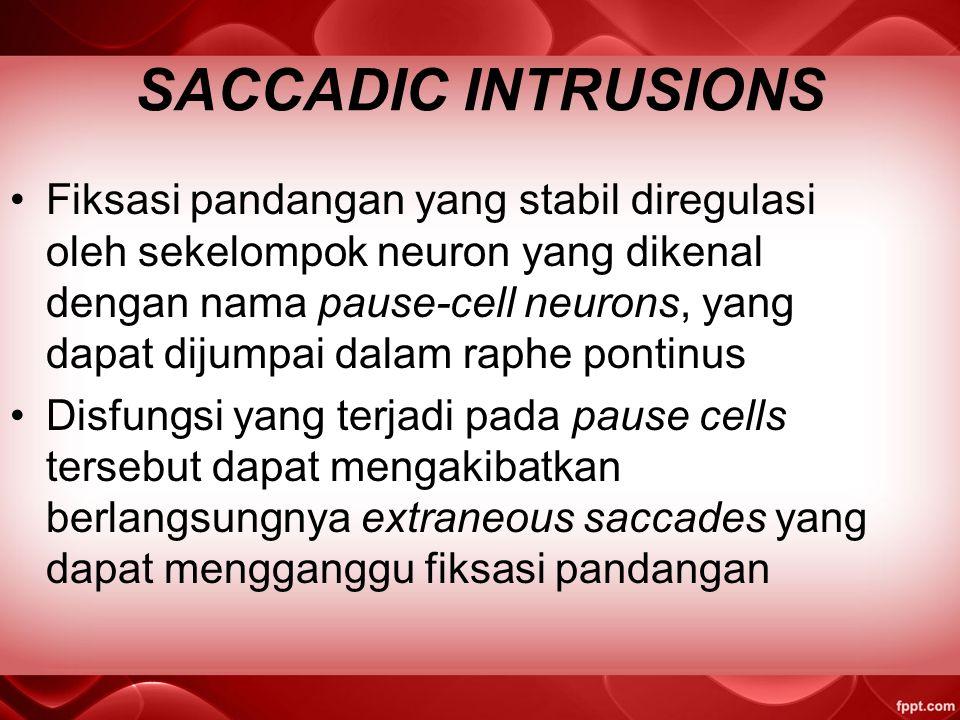 SACCADIC INTRUSIONS Fiksasi pandangan yang stabil diregulasi oleh sekelompok neuron yang dikenal dengan nama pause-cell neurons, yang dapat dijumpai dalam raphe pontinus Disfungsi yang terjadi pada pause cells tersebut dapat mengakibatkan berlangsungnya extraneous saccades yang dapat mengganggu fiksasi pandangan
