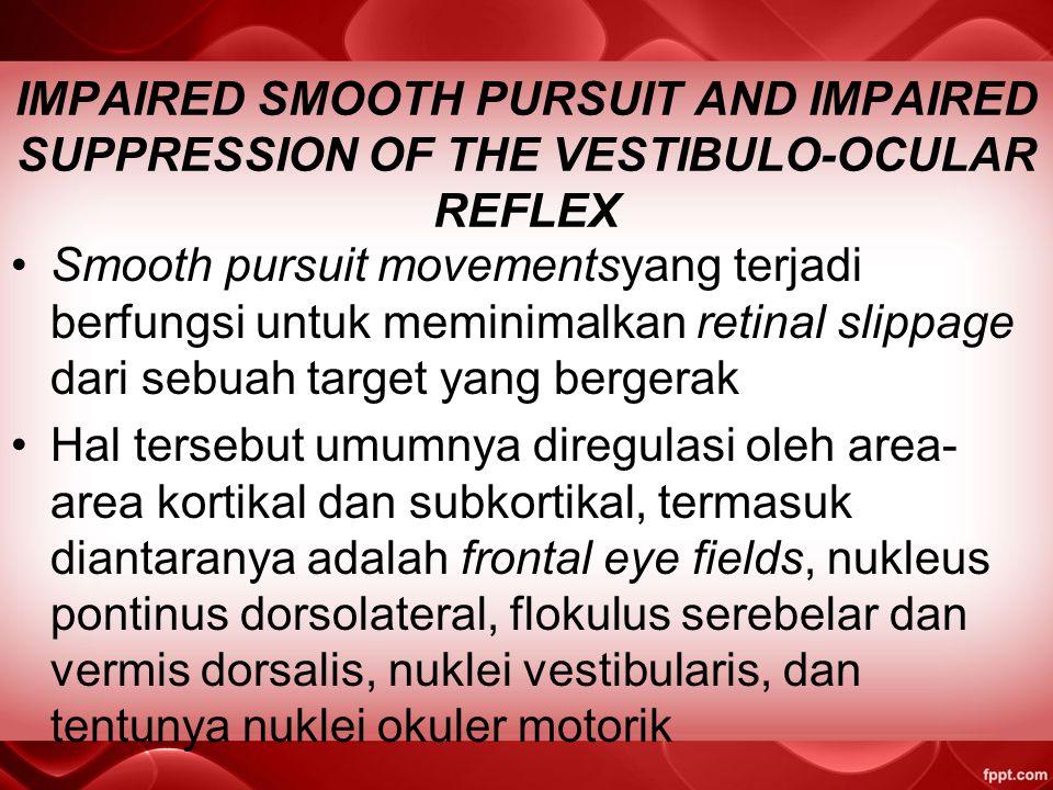 IMPAIRED SMOOTH PURSUIT AND IMPAIRED SUPPRESSION OF THE VESTIBULO-OCULAR REFLEX Smooth pursuit movementsyang terjadi berfungsi untuk meminimalkan retinal slippage dari sebuah target yang bergerak Hal tersebut umumnya diregulasi oleh area- area kortikal dan subkortikal, termasuk diantaranya adalah frontal eye fields, nukleus pontinus dorsolateral, flokulus serebelar dan vermis dorsalis, nuklei vestibularis, dan tentunya nuklei okuler motorik